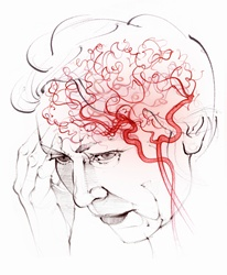 Brain blood supply in elderly woman with vascular dementia