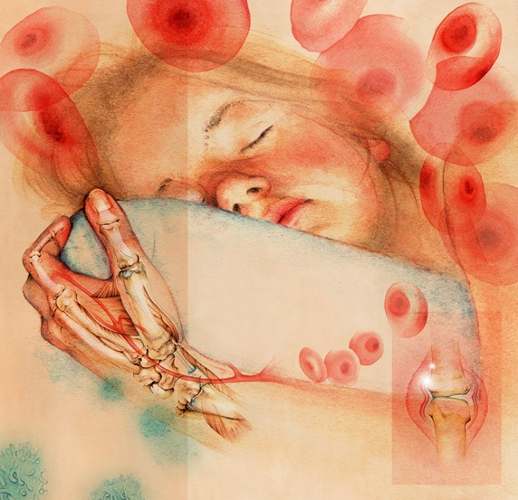 Sleeping girl with inflammatory arthritis in transparent hand